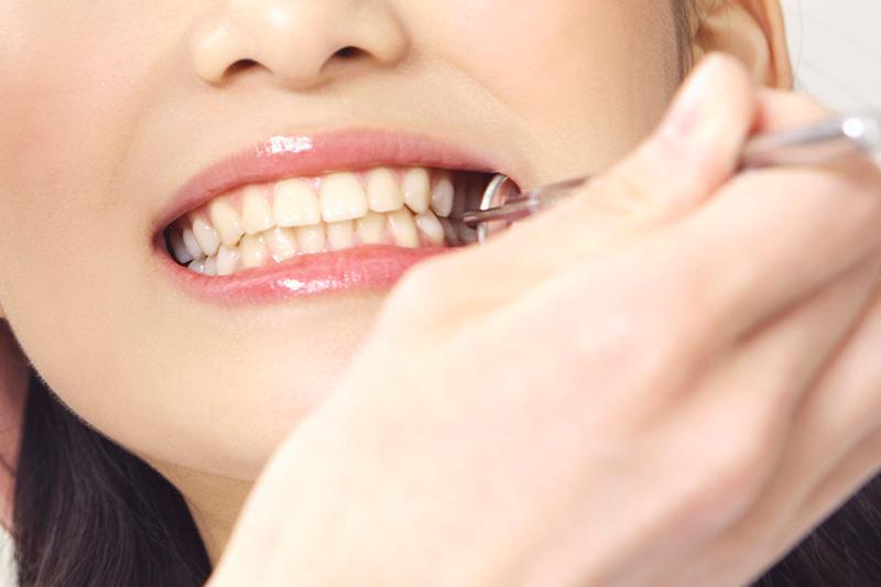 口腔内のPHの変化